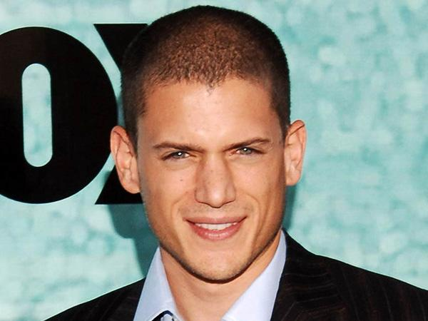 Best Choice Among Hairstyles For Balding Men Does Not