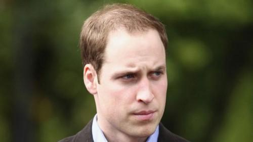 Good Haircuts For Balding Men Best Hairstyles