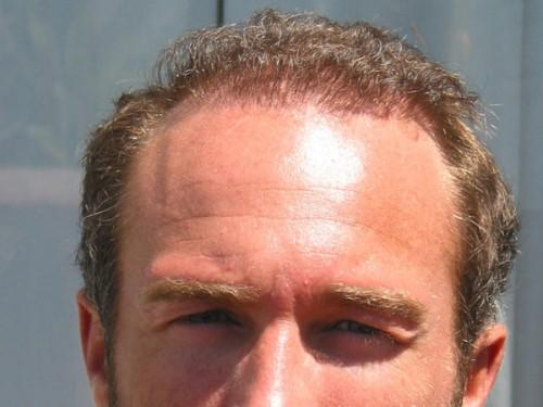 Short Wavy Hairstyle For Balding Man Who Best
